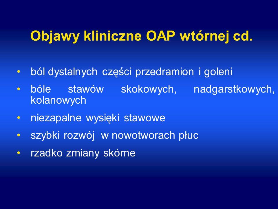 Objawy kliniczne OAP wtórnej cd. ból dystalnych części przedramion i goleni bóle stawów skokowych, nadgarstkowych, kolanowych niezapalne wysięki stawo