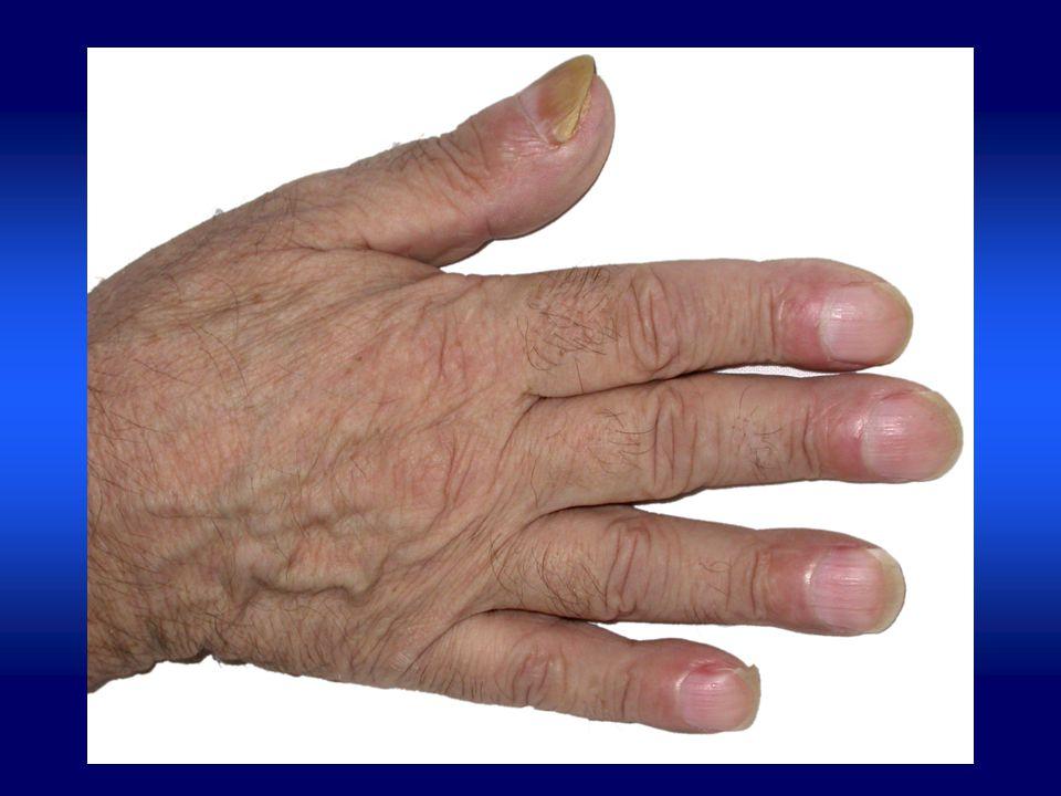Objawy kliniczne OAP pierwotnej Pierwotna OAP –pachydermoperiostosis Częściej u M jak u K 9:1 Predyspozycja genetyczna – wywiad rodzinny u 1/3 -pałeczkowatość palców -okostnowy odczyn wytwórczy -uogólniony przerost skóry