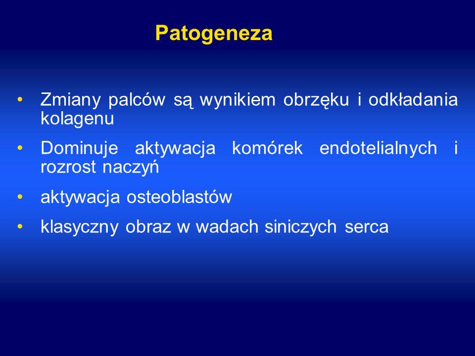 Patogeneza Zmiany palców są wynikiem obrzęku i odkładania kolagenu Dominuje aktywacja komórek endotelialnych i rozrost naczyń aktywacja osteoblastów k