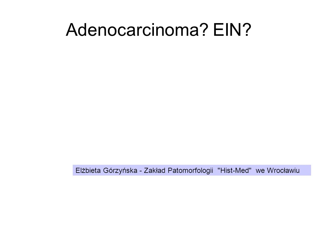 Adenocarcinoma? 5- l.54 wycięty trzon macicy z rakiem - porównanie Endometrium- Polip z rakiem 1/7