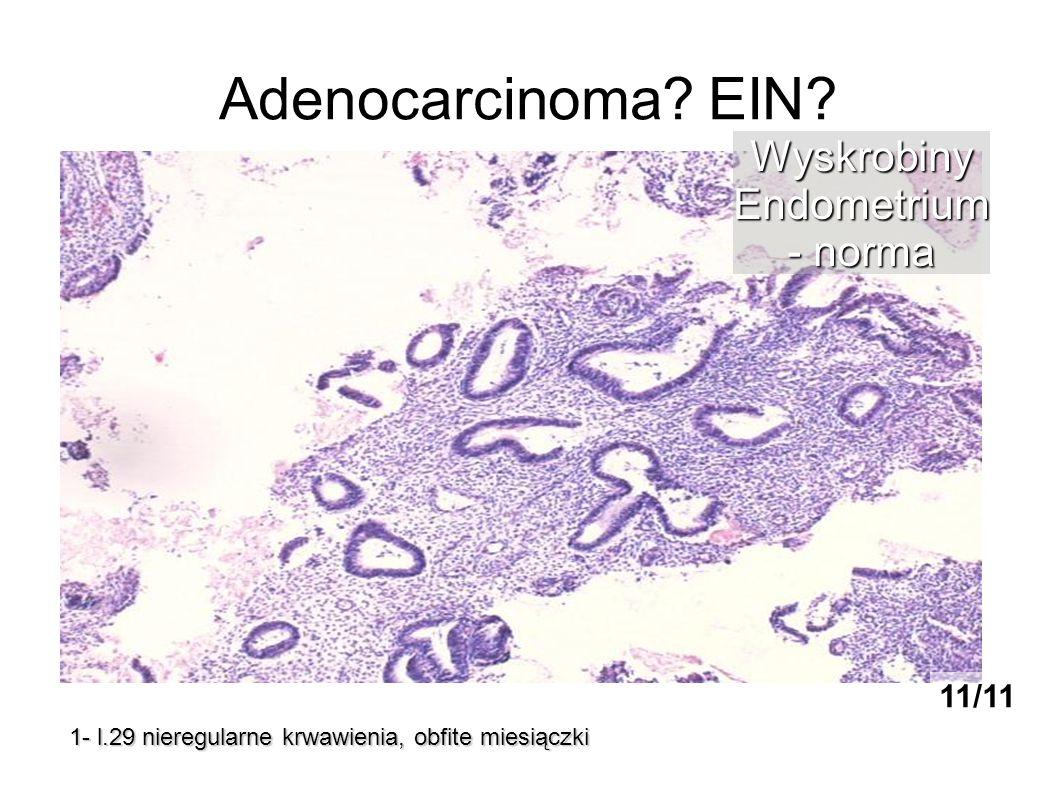 Adenocarcinoma? EIN? 1- l.29 nieregularne krwawienia, obfite miesiączki WyskrobinyEndometrium - norma 11/11