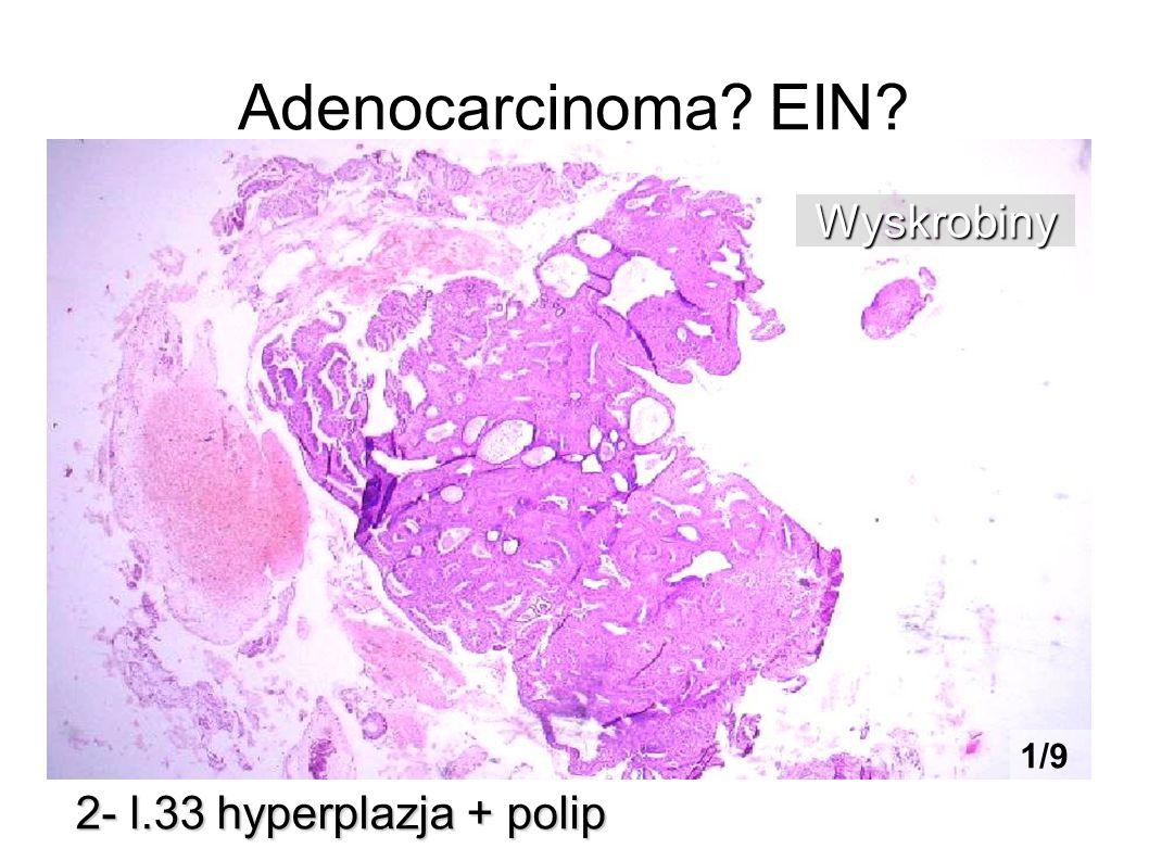Adenocarcinoma? EIN? 2- l.33 hyperplazja + polip Wyskrobiny 1/9