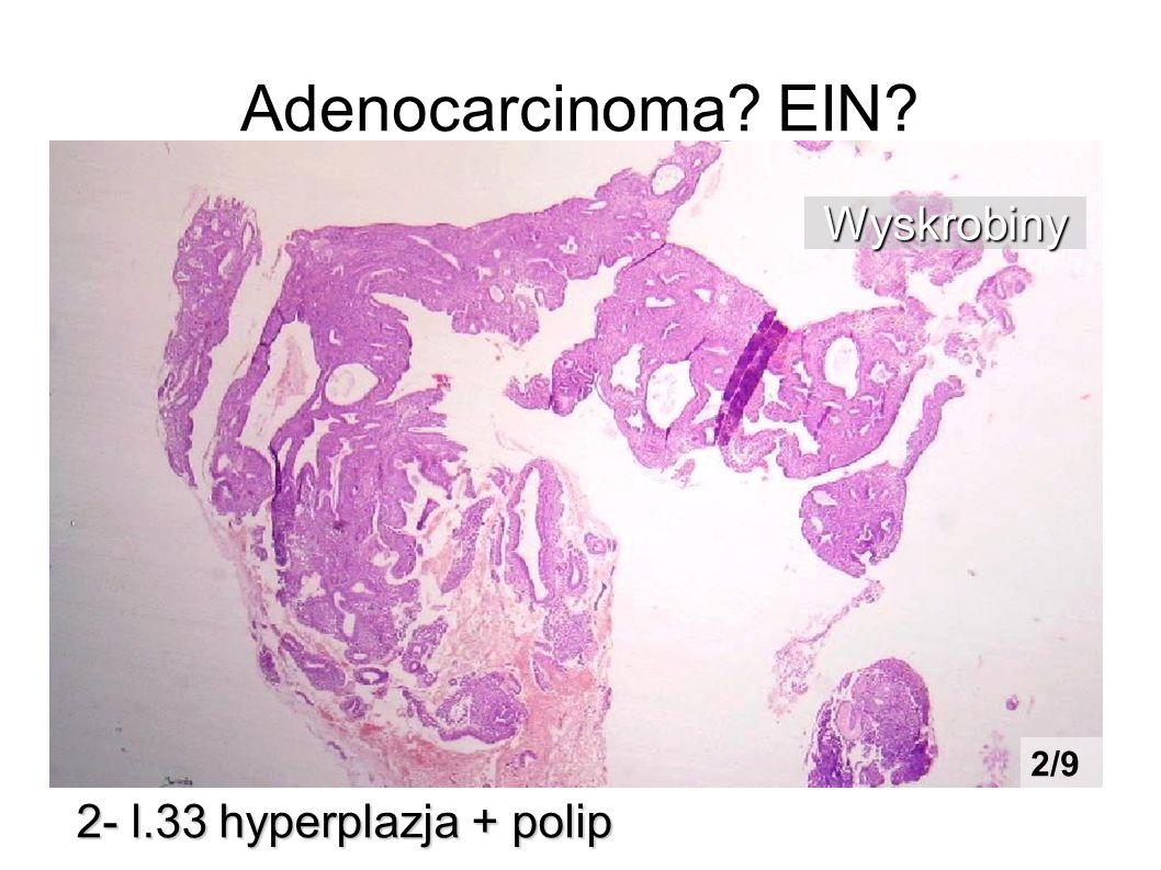 Adenocarcinoma? EIN? 2- l.33 hyperplazja + polip Wyskrobiny 2/9