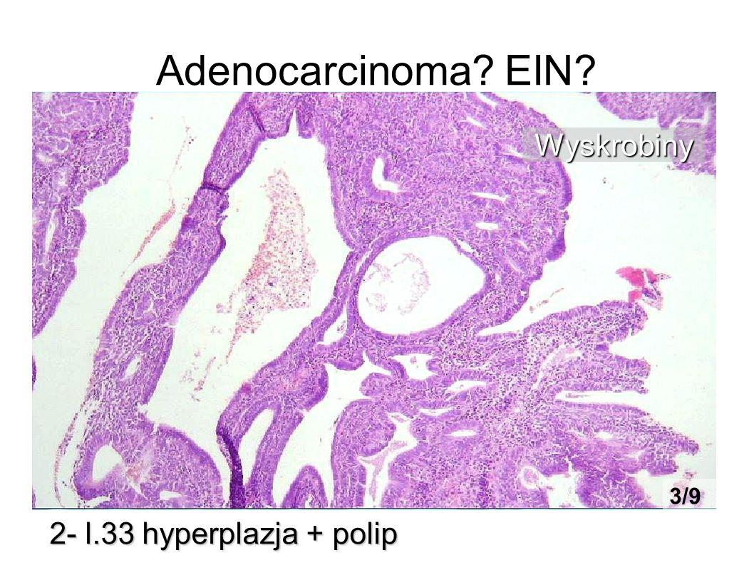 Adenocarcinoma? EIN? 2- l.33 hyperplazja + polip Wyskrobiny 3/9