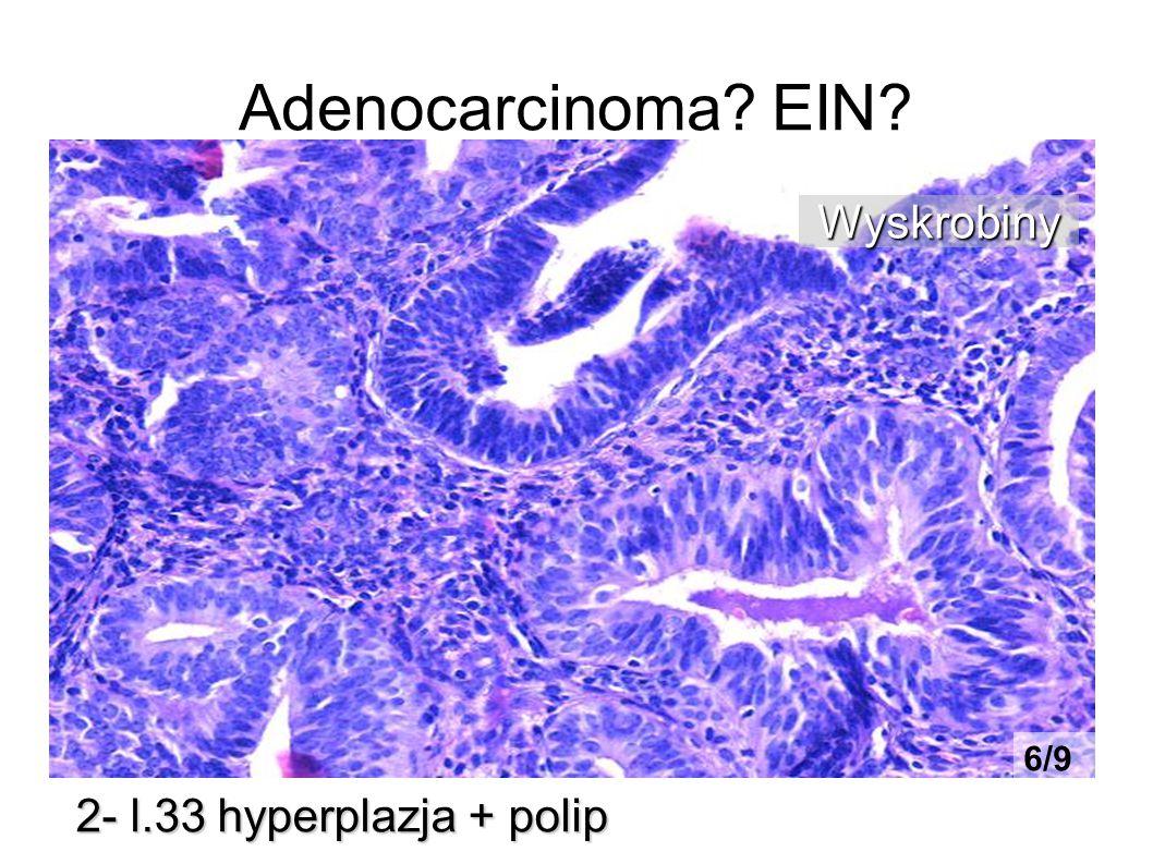 Adenocarcinoma? EIN? 2- l.33 hyperplazja + polip Wyskrobiny 6/9
