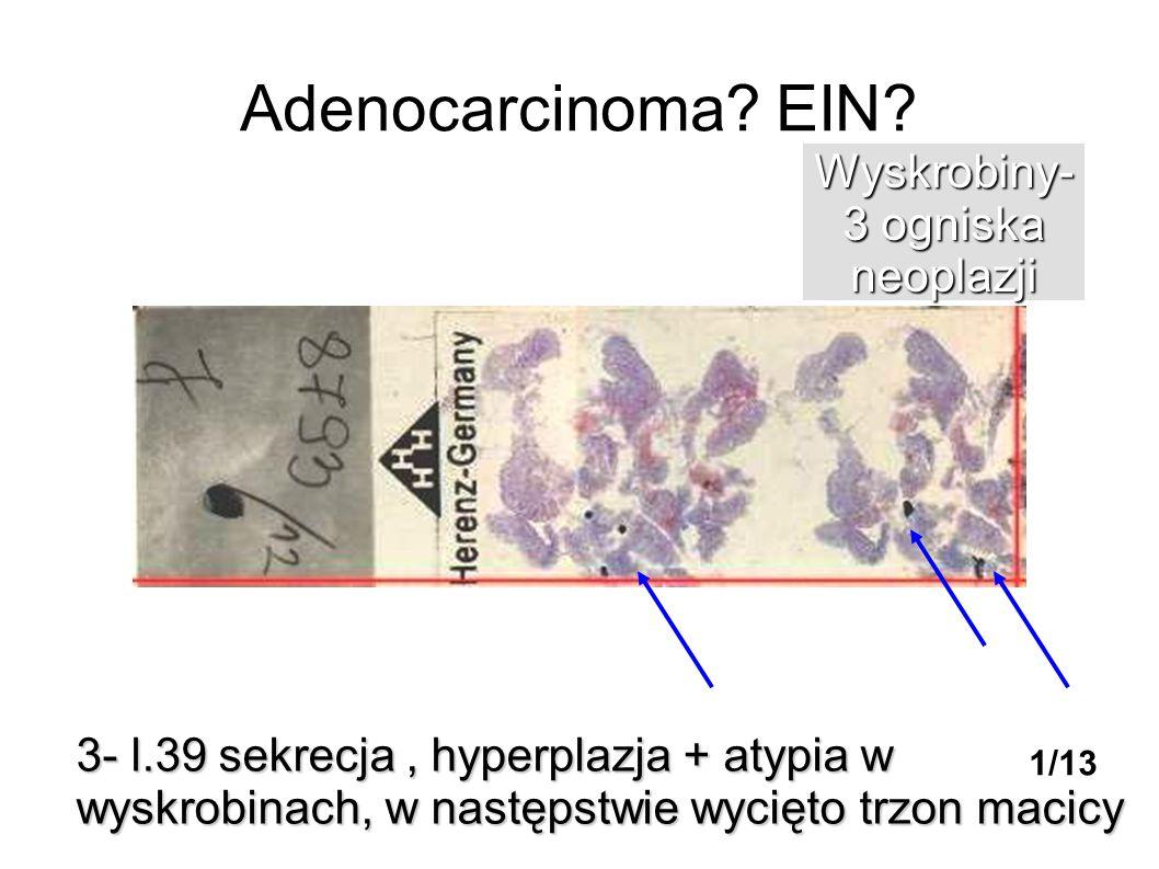 Adenocarcinoma? EIN? 3- l.39 sekrecja, hyperplazja + atypia w wyskrobinach, w następstwie wycięto trzon macicy Wyskrobiny- 3 ogniska neoplazji 1/13