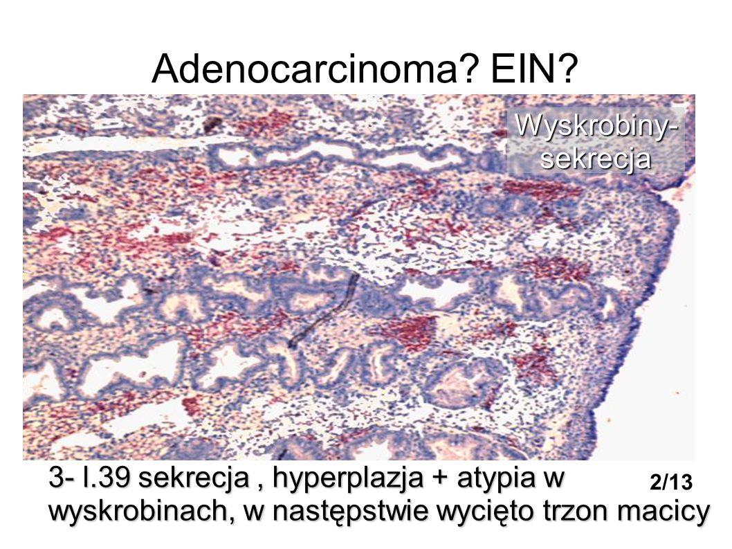Adenocarcinoma? EIN? 3- l.39 sekrecja, hyperplazja + atypia w wyskrobinach, w następstwie wycięto trzon macicy Wyskrobiny-sekrecja 2/13