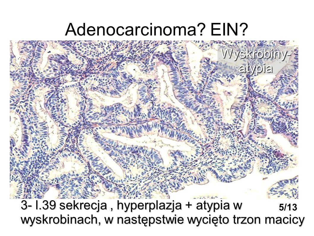 Adenocarcinoma? EIN? 3- l.39 sekrecja, hyperplazja + atypia w wyskrobinach, w następstwie wycięto trzon macicy Wyskrobiny-atypia 5/13