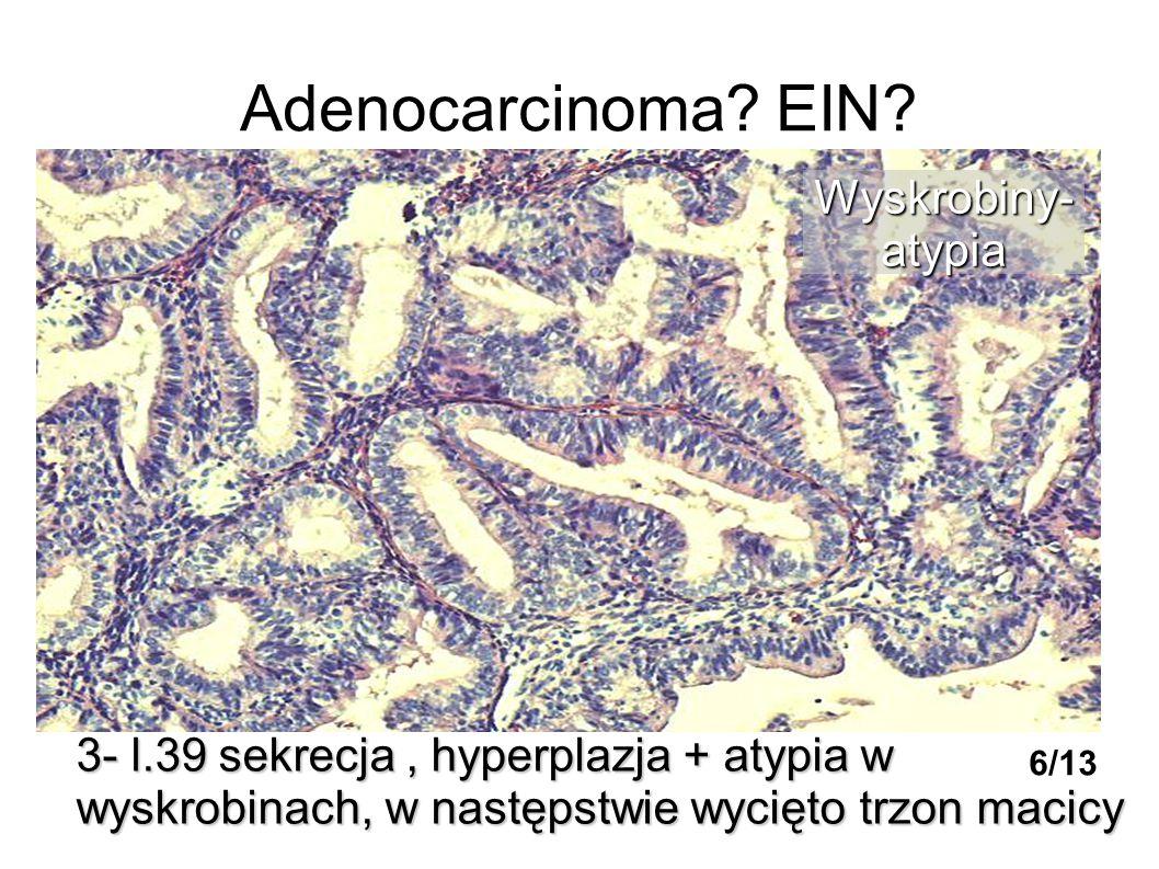 Adenocarcinoma? EIN? 3- l.39 sekrecja, hyperplazja + atypia w wyskrobinach, w następstwie wycięto trzon macicy Wyskrobiny-atypia 6/13