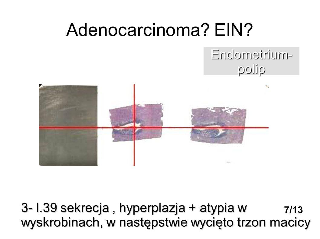 Adenocarcinoma? EIN? 3- l.39 sekrecja, hyperplazja + atypia w wyskrobinach, w następstwie wycięto trzon macicy Endometrium-polip 7/13
