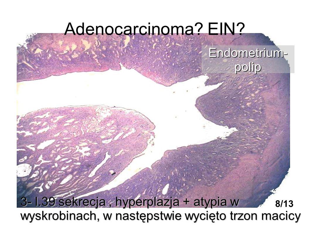 Adenocarcinoma? EIN? 3- l.39 sekrecja, hyperplazja + atypia w wyskrobinach, w następstwie wycięto trzon macicy Endometrium-polip 8/13