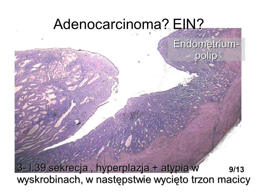 Adenocarcinoma? EIN? 3- l.39 sekrecja, hyperplazja + atypia w wyskrobinach, w następstwie wycięto trzon macicy Endometrium-polip 9/13