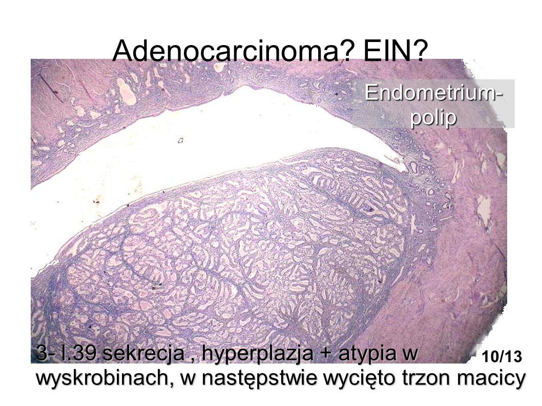 Adenocarcinoma? EIN? 3- l.39 sekrecja, hyperplazja + atypia w wyskrobinach, w następstwie wycięto trzon macicy Endometrium-polip 10/13