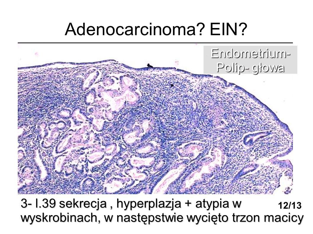 Adenocarcinoma? EIN? 3- l.39 sekrecja, hyperplazja + atypia w wyskrobinach, w następstwie wycięto trzon macicy Endometrium- Polip- głowa 12/13