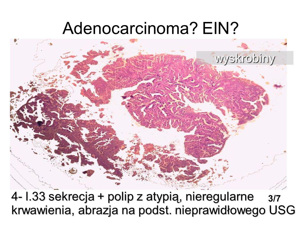 Adenocarcinoma? EIN? 4- l.33 sekrecja + polip z atypią, nieregularne krwawienia, abrazja na podst. nieprawidłowego USG wyskrobiny 3/7