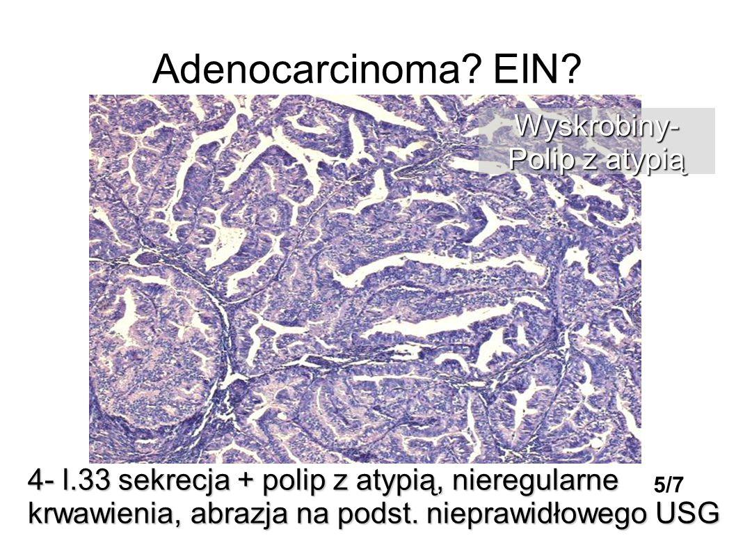 Adenocarcinoma? EIN? 4- l.33 sekrecja + polip z atypią, nieregularne krwawienia, abrazja na podst. nieprawidłowego USG Wyskrobiny- Polip z atypią 5/7