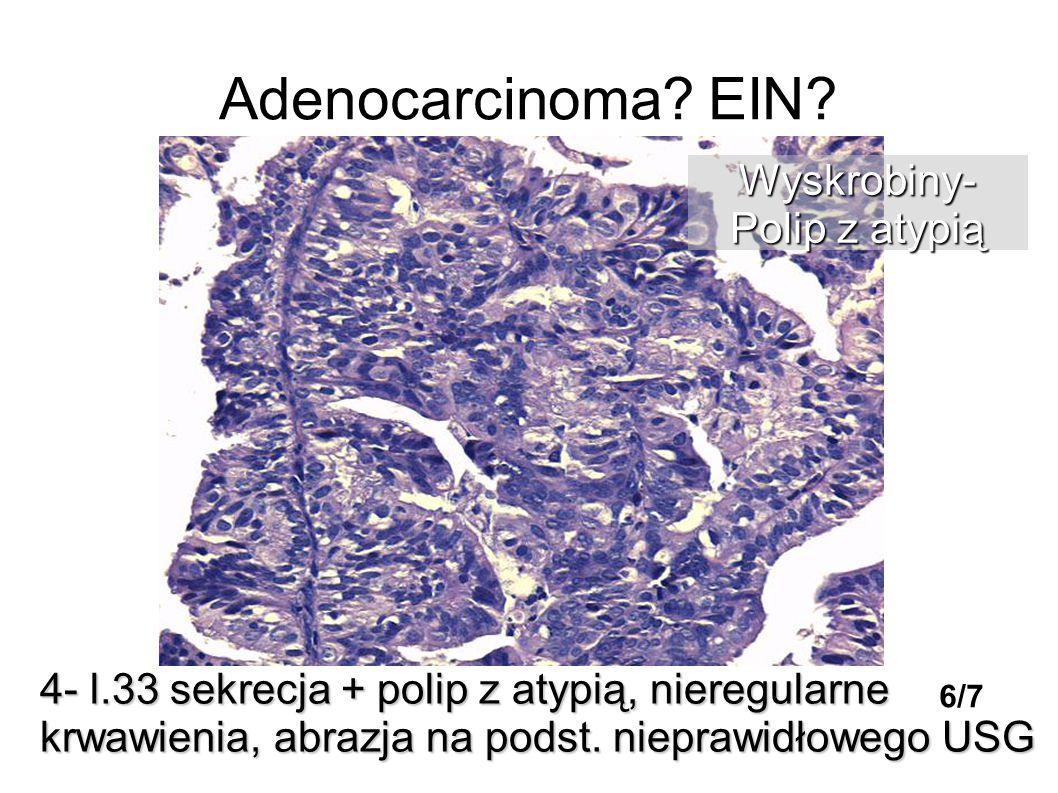 Adenocarcinoma? EIN? 4- l.33 sekrecja + polip z atypią, nieregularne krwawienia, abrazja na podst. nieprawidłowego USG Wyskrobiny- Polip z atypią 6/7