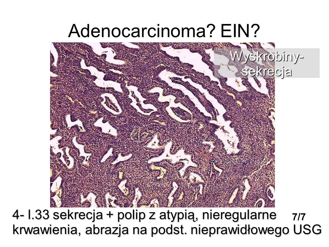 Adenocarcinoma? EIN? 4- l.33 sekrecja + polip z atypią, nieregularne krwawienia, abrazja na podst. nieprawidłowego USG Wyskrobiny-sekrecja 7/7