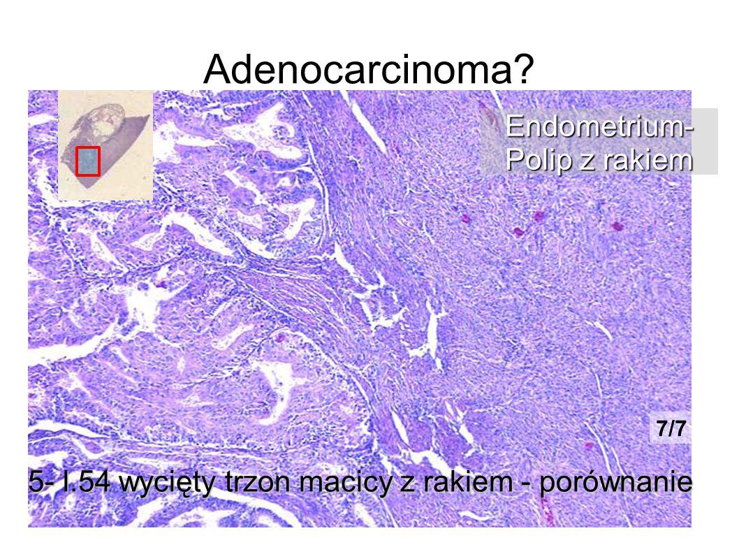 Adenocarcinoma? 5- l.54 wycięty trzon macicy z rakiem - porównanie Endometrium- Polip z rakiem 7/7
