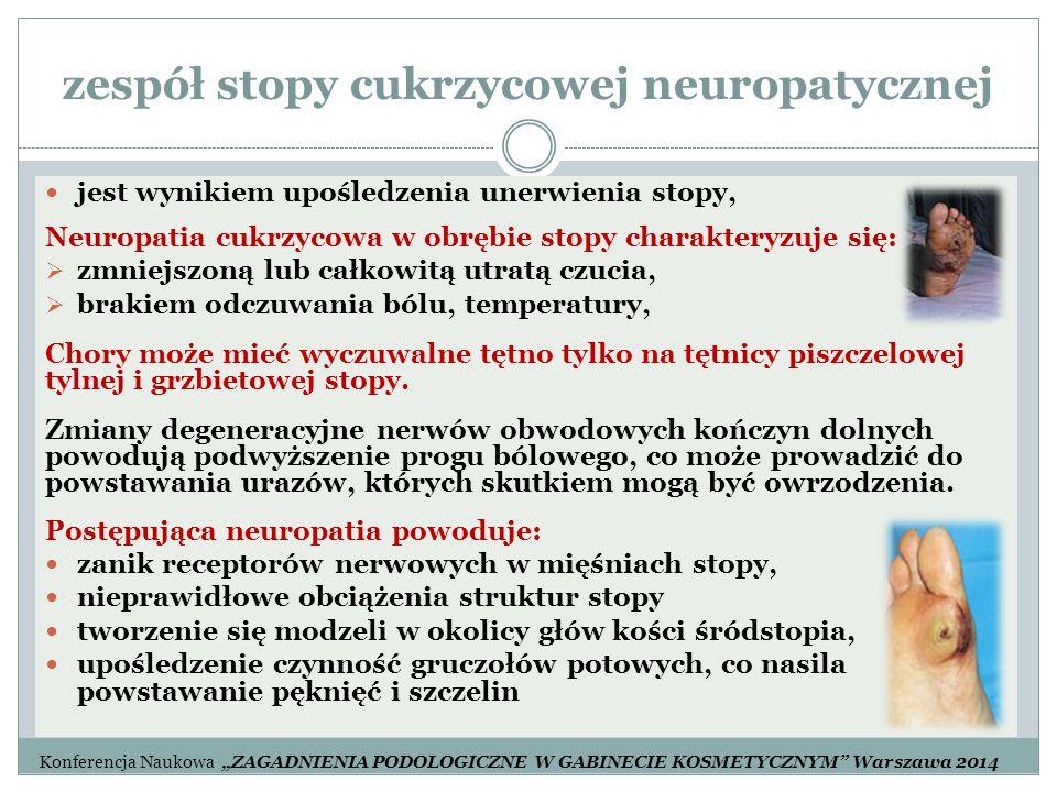 zespół stopy cukrzycowej neuropatycznej jest wynikiem upośledzenia unerwienia stopy, Neuropatia cukrzycowa w obrębie stopy charakteryzuje się:  zmnie