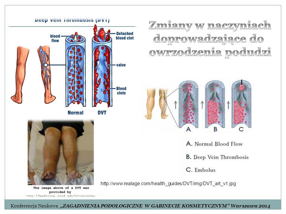 """http://www.realage.com/health_guides/DVT/img/DVT_art_v1.jpg Konferencja Naukowa """"ZAGADNIENIA PODOLOGICZNE W GABINECIE KOSMETYCZNYM"""" Warszawa 2014"""