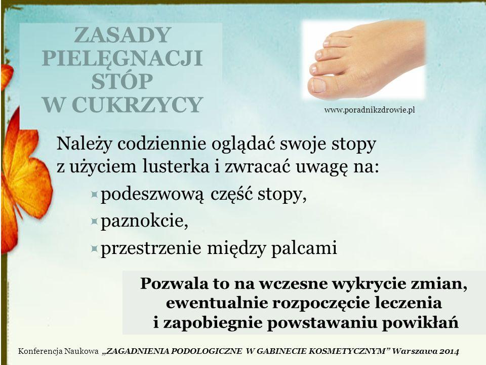 ZASADY PIELĘGNACJI STÓP W CUKRZYCY Należy codziennie oglądać swoje stopy z użyciem lusterka i zwracać uwagę na:  podeszwową część stopy,  paznokcie,