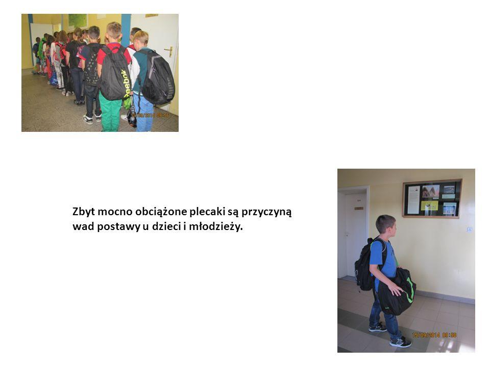 Zbyt mocno obciążone plecaki są przyczyną wad postawy u dzieci i młodzieży.
