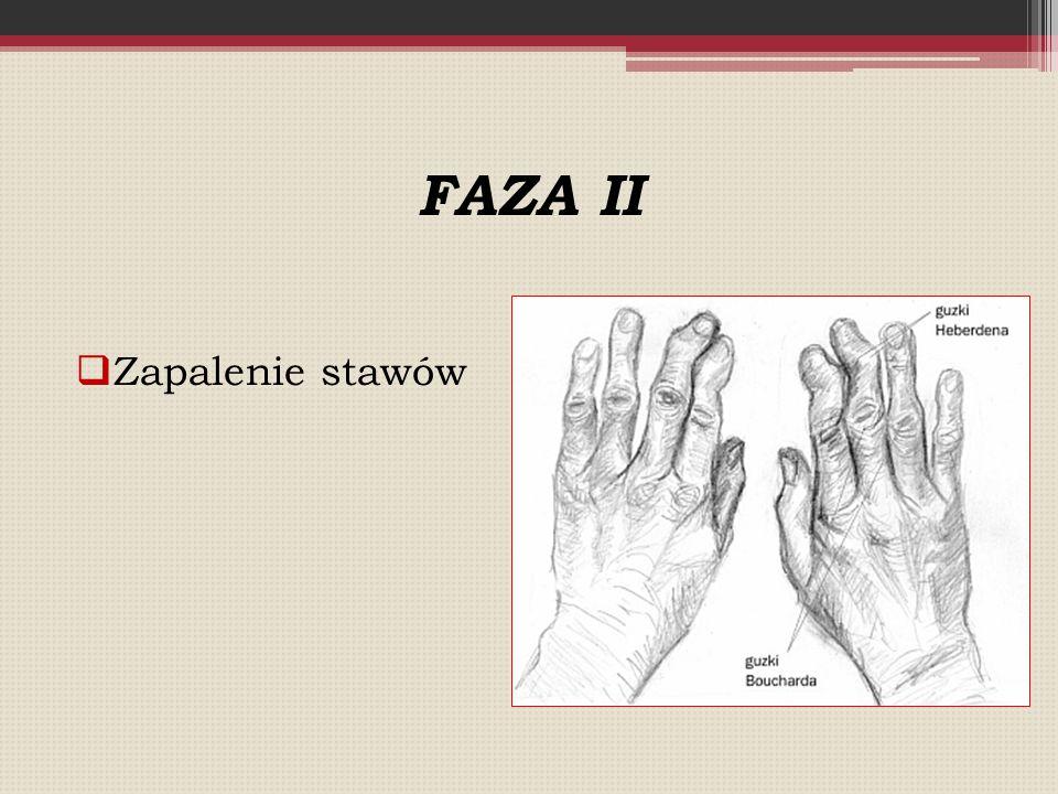 FAZA II  Zapalenie stawów