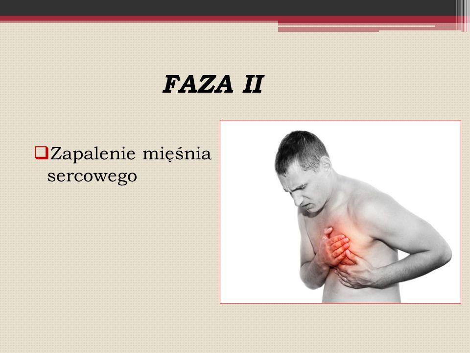  Zapalenie mięśnia sercowego FAZA II