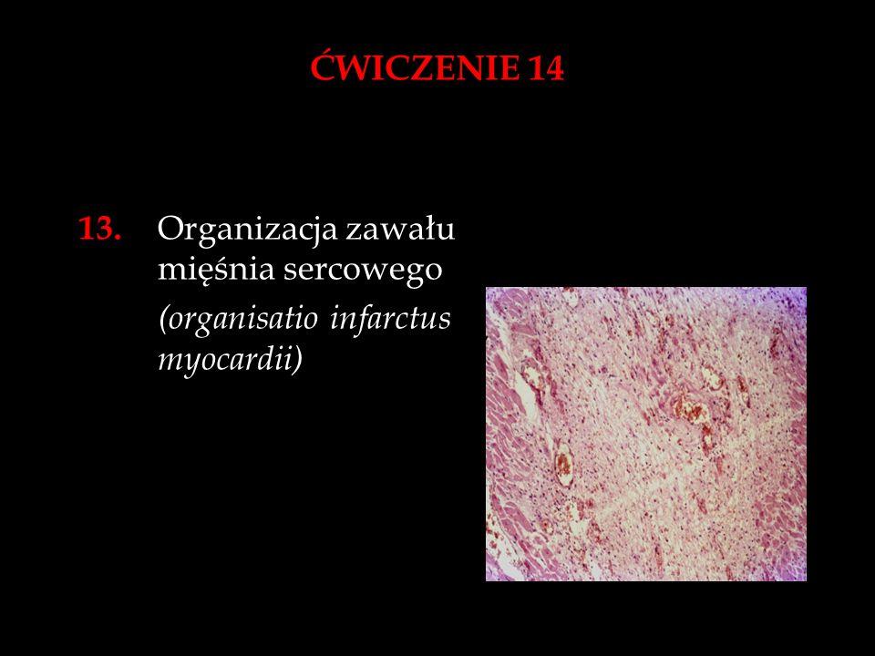 ĆWICZENIE 14 13. Organizacja zawału mięśnia sercowego (organisatio infarctus myocardii)