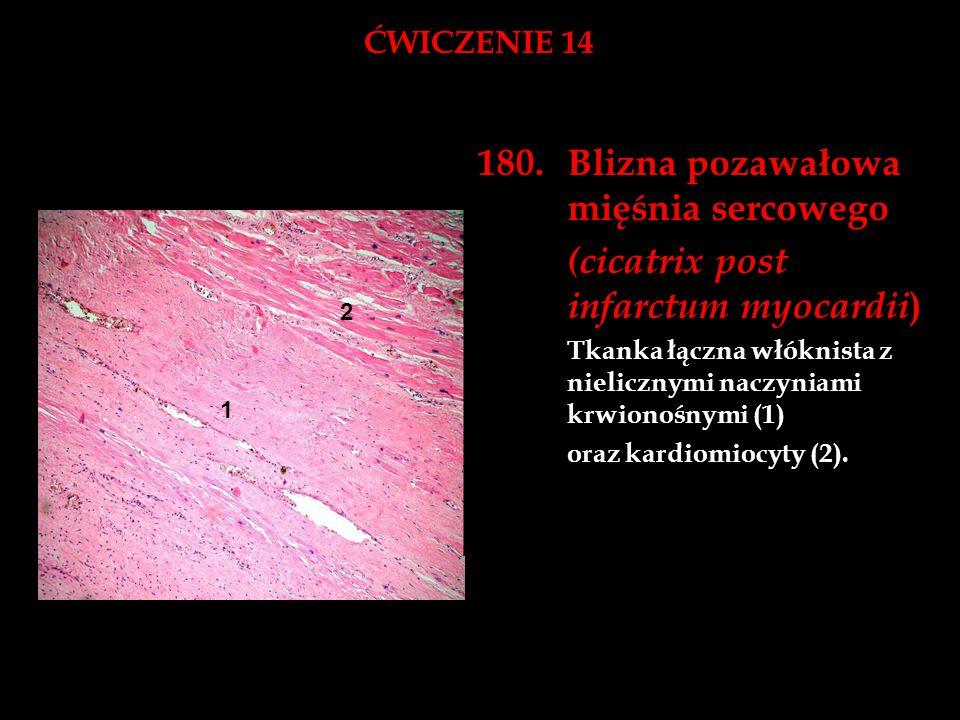 ĆWICZENIE 14 180.Blizna pozawałowa mięśnia sercowego (cicatrix post infarctum myocardii ) Tkanka łączna włóknista z nielicznymi naczyniami krwionośnym