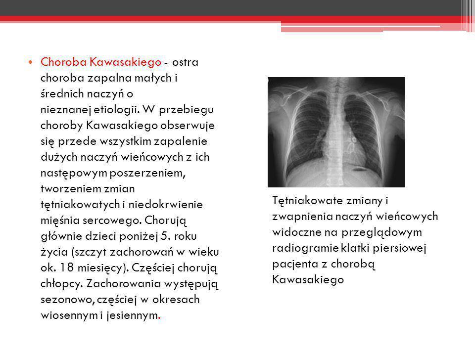 Choroba Kawasakiego - ostra choroba zapalna małych i średnich naczyń o nieznanej etiologii. W przebiegu choroby Kawasakiego obserwuje się przede wszys