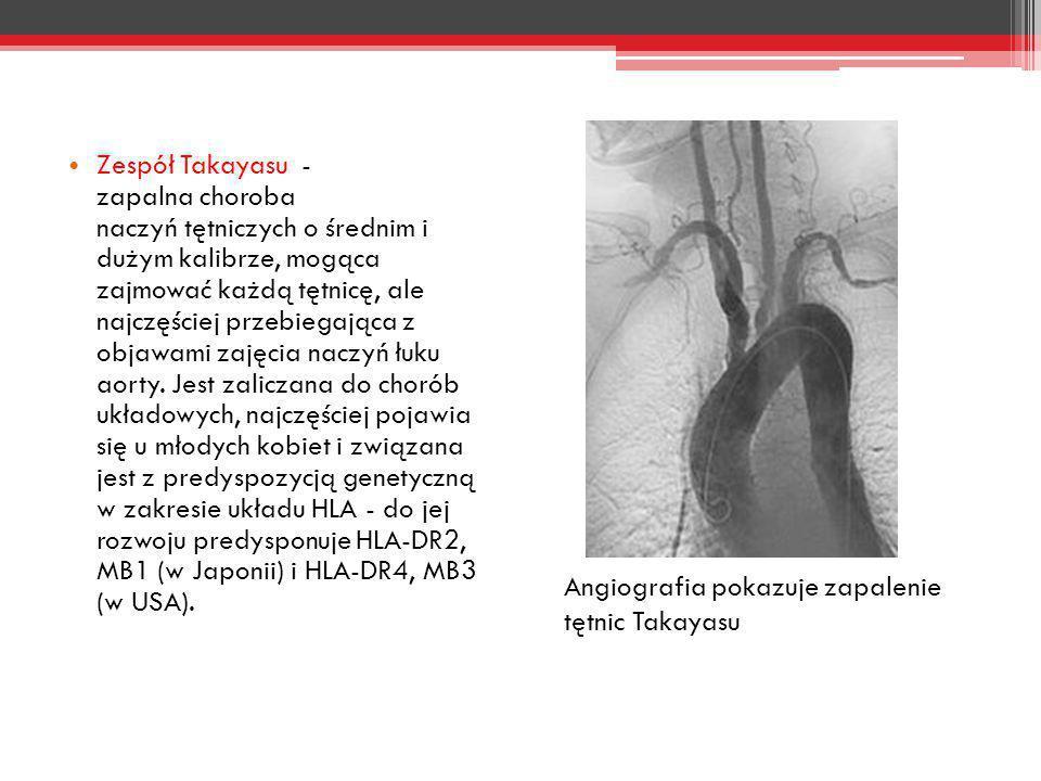 Zespół Takayasu - zapalna choroba naczyń tętniczych o średnim i dużym kalibrze, mogąca zajmować każdą tętnicę, ale najczęściej przebiegająca z objawam