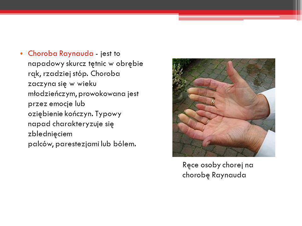 Choroba Raynauda - jest to napadowy skurcz tętnic w obrębie rąk, rzadziej stóp. Choroba zaczyna się w wieku młodzieńczym, prowokowana jest przez emocj