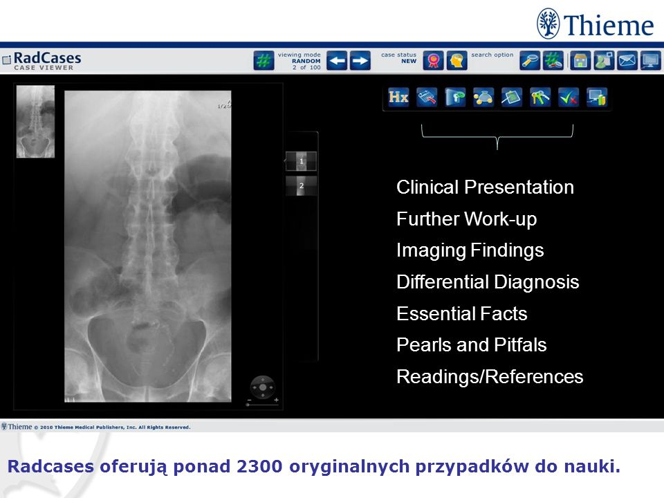 Clinical Presentation Further Work-up Imaging Findings Differential Diagnosis Essential Facts Pearls and Pitfals Readings/References Radcases oferują ponad 2300 oryginalnych przypadków do nauki.