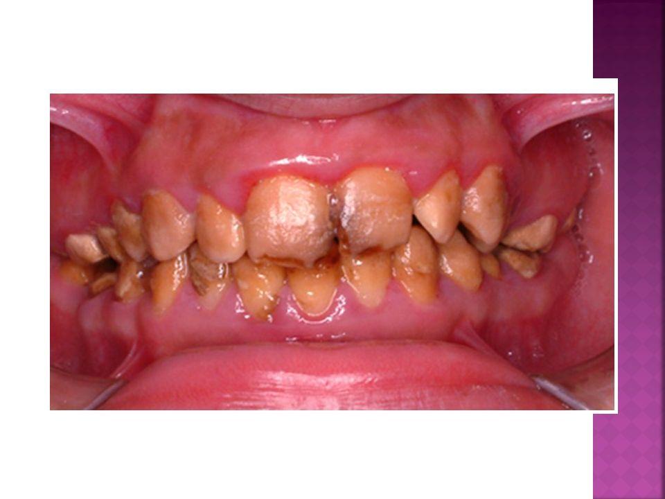 Spotyka się z kimś z żółtymi zębami